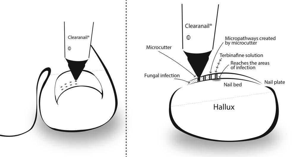 Fungal Nail Treatment – Compleet Feet