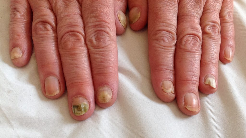 Finger Nail Infections – Are they fungal, candida or bacterial ...