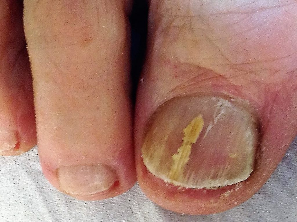 Difficulties of Treating a Fungal Nail Dermatophytoma with a Biofilm ...